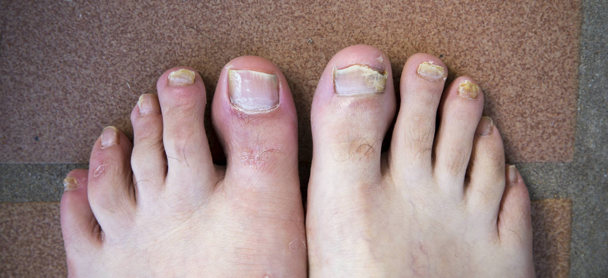 Fungal nail infection two feet