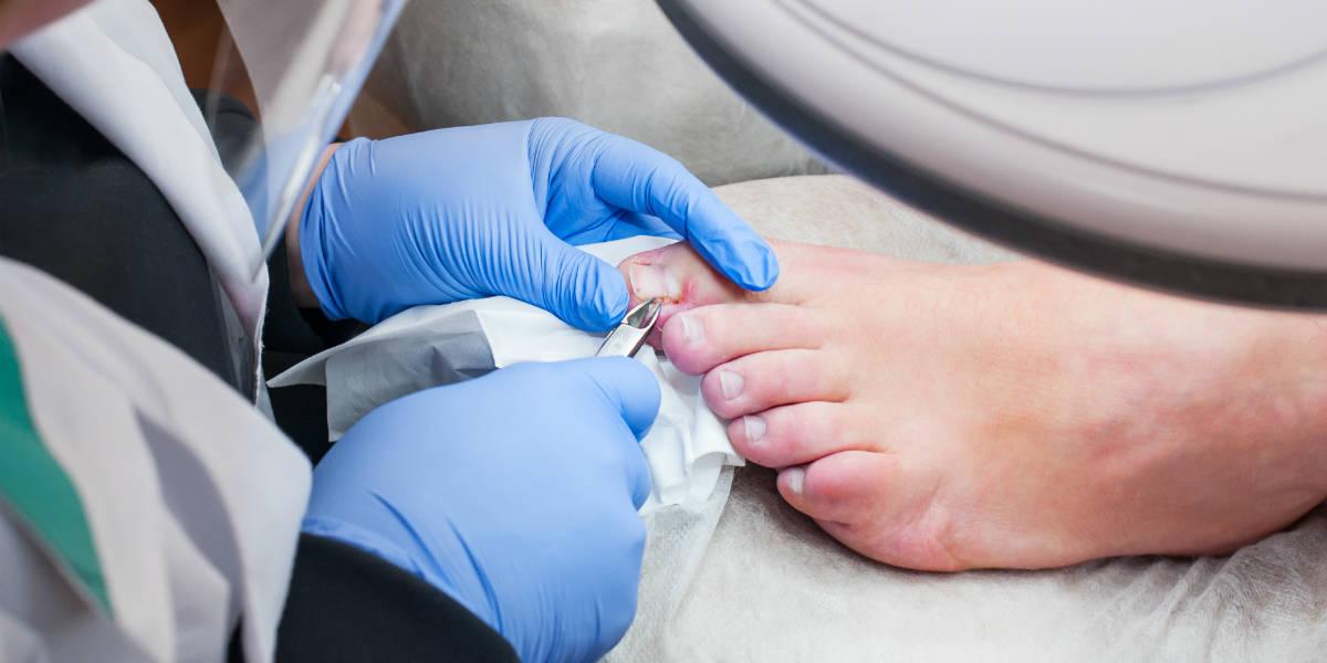 Podiatrist treating toenail fungus.